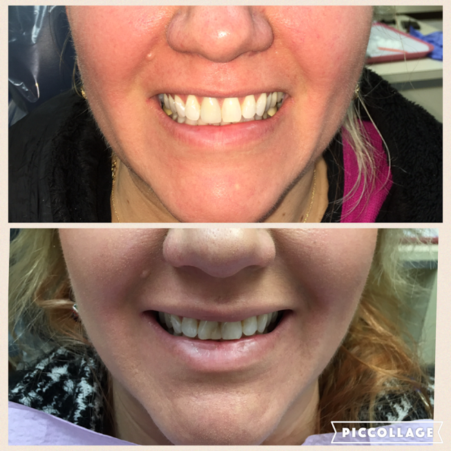 Linden Dental Before/After