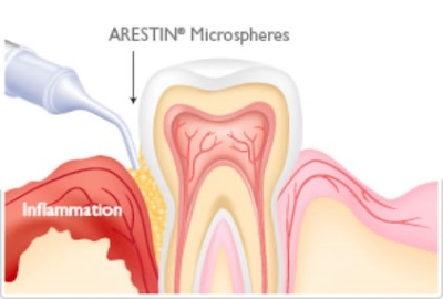 Arestin Therapy