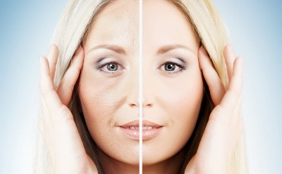 Botox Comparation