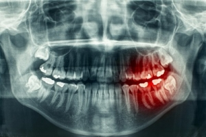 Traumatic Dental Injury