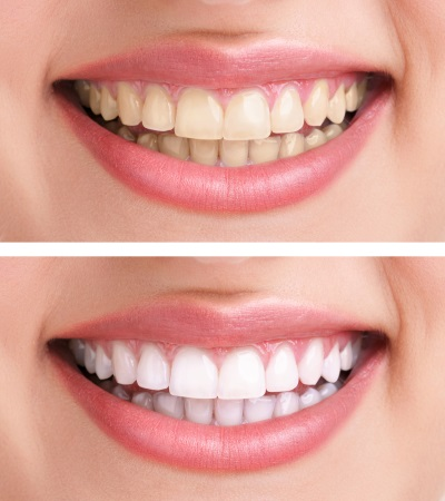 Cosmetic Dentistry Zoom Whitening